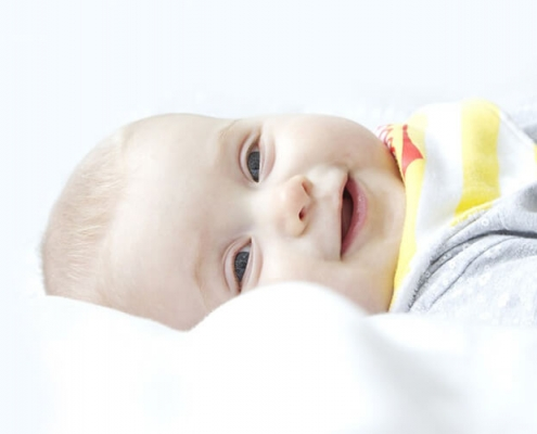 what is plagiocephaly